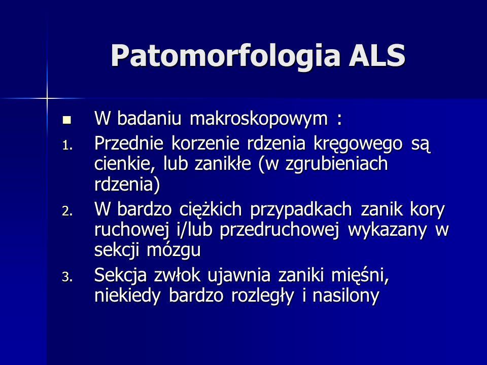Patomorfologia ALS W badaniu makroskopowym : W badaniu makroskopowym : 1. Przednie korzenie rdzenia kręgowego są cienkie, lub zanikłe (w zgrubieniach