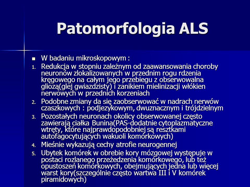Patomorfologia ALS W badaniu mikroskopowym : W badaniu mikroskopowym : 1. Redukcja w stopniu zależnym od zaawansowania choroby neuronów zlokalizowanyc