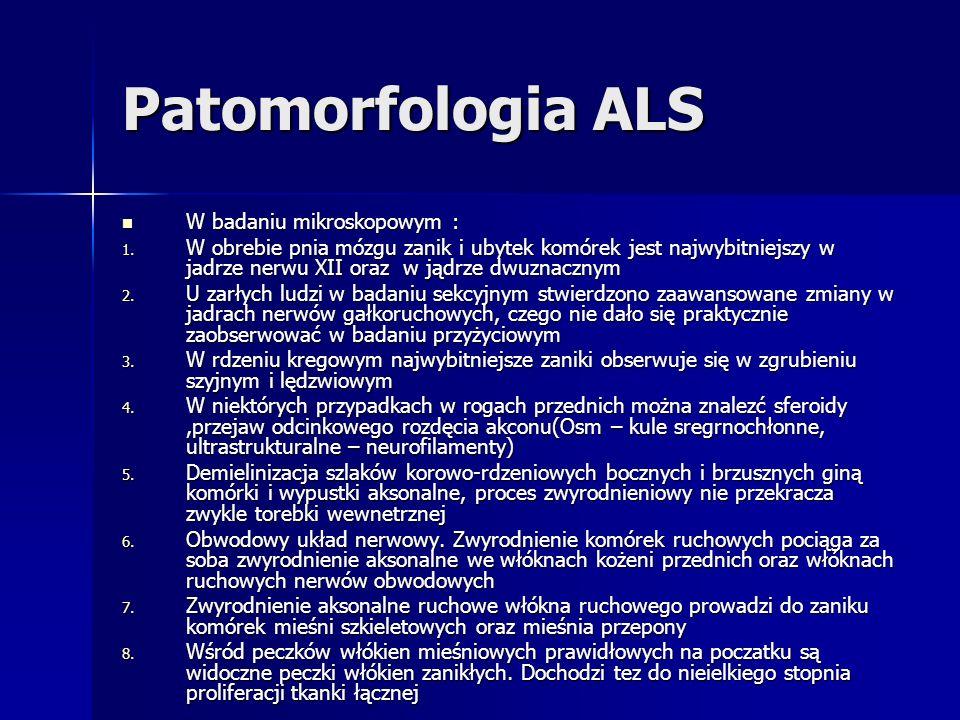 Patomorfologia ALS W badaniu mikroskopowym : W badaniu mikroskopowym : 1. W obrebie pnia mózgu zanik i ubytek komórek jest najwybitniejszy w jadrze ne