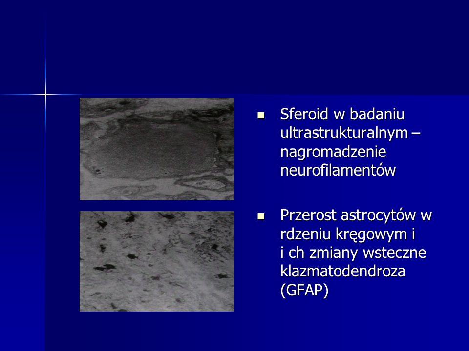Sferoid w badaniu ultrastrukturalnym – nagromadzenie neurofilamentów Sferoid w badaniu ultrastrukturalnym – nagromadzenie neurofilamentów Przerost ast