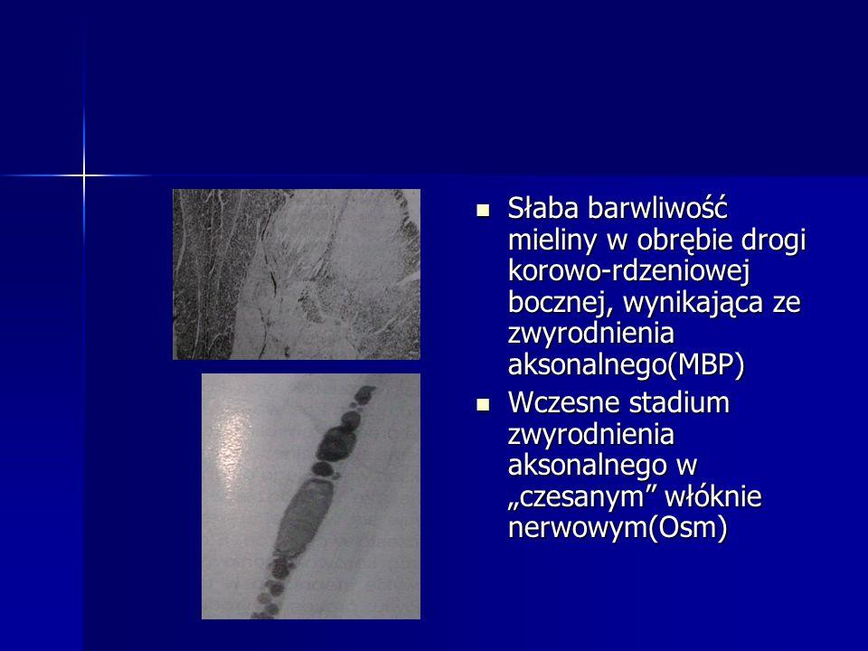 Słaba barwliwość mieliny w obrębie drogi korowo-rdzeniowej bocznej, wynikająca ze zwyrodnienia aksonalnego(MBP) Słaba barwliwość mieliny w obrębie dro