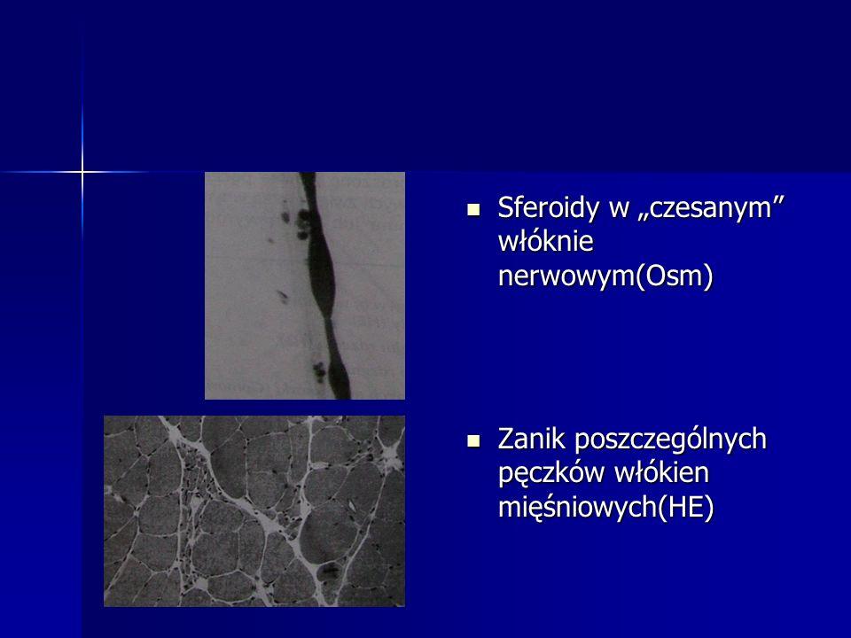 Sferoidy w czesanym włóknie nerwowym(Osm) Sferoidy w czesanym włóknie nerwowym(Osm) Zanik poszczególnych pęczków włókien mięśniowych(HE) Zanik poszcze