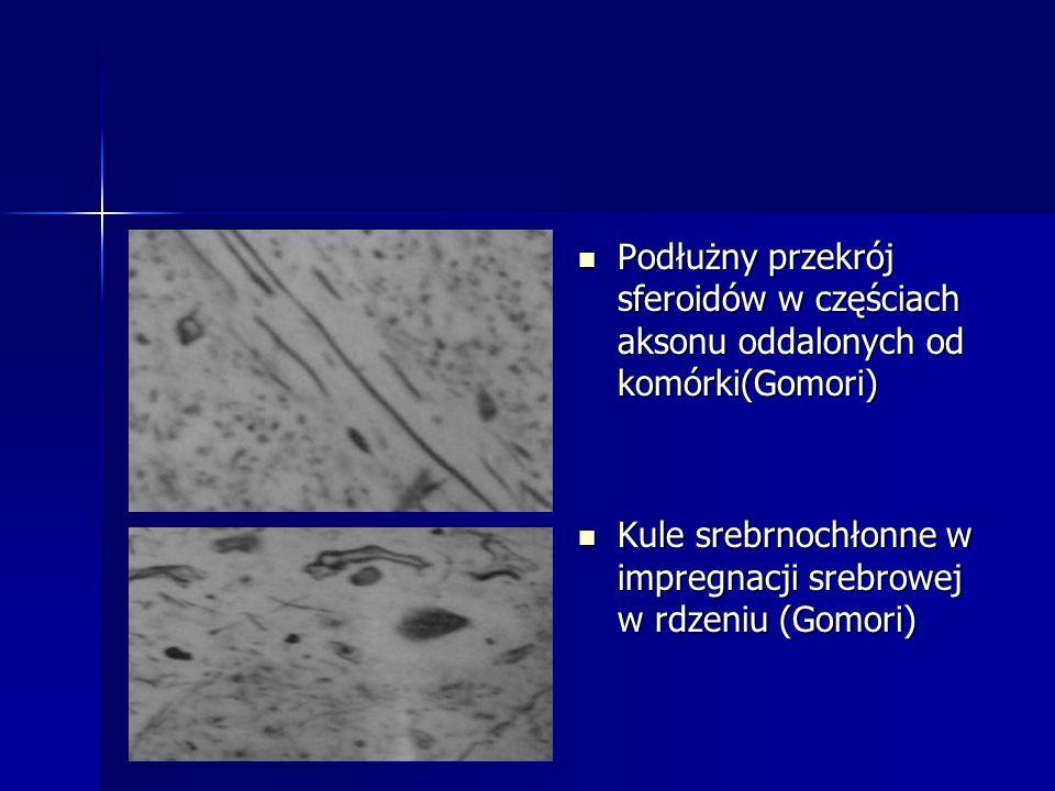 Podłużny przekrój sferoidów w częściach aksonu oddalonych od komórki(Gomori) Podłużny przekrój sferoidów w częściach aksonu oddalonych od komórki(Gomo