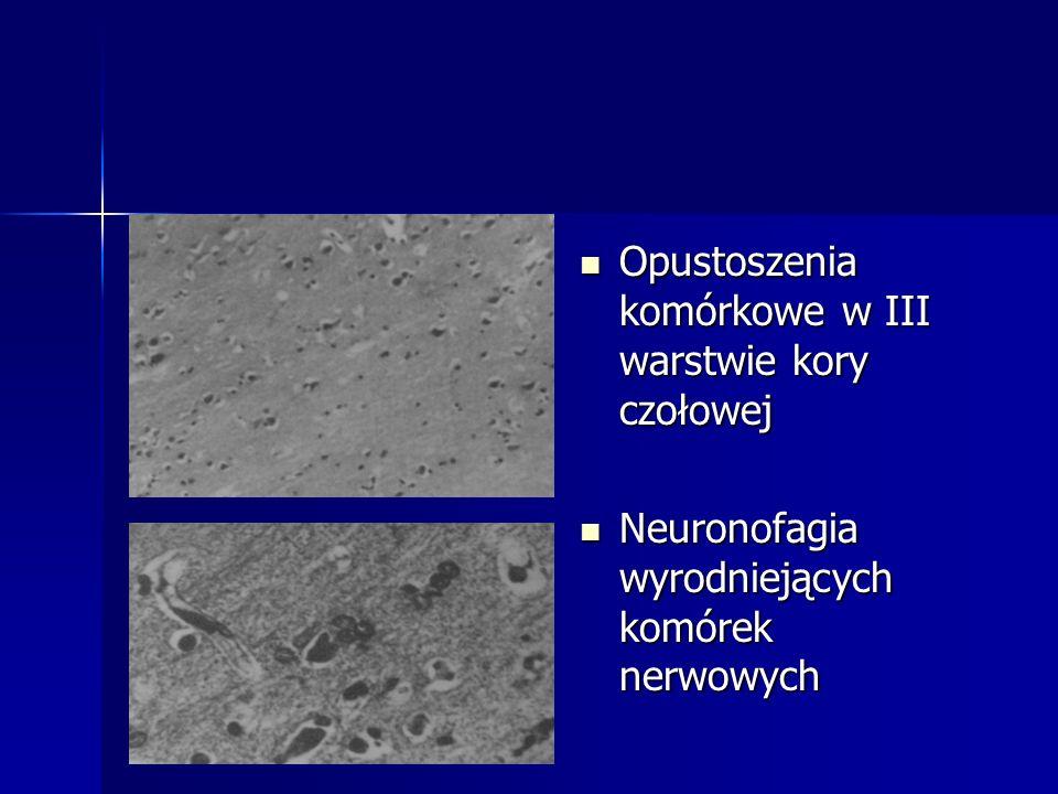 Opustoszenia komórkowe w III warstwie kory czołowej Opustoszenia komórkowe w III warstwie kory czołowej Neuronofagia wyrodniejących komórek nerwowych