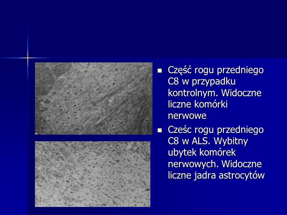 Część rogu przedniego C8 w przypadku kontrolnym. Widoczne liczne komórki nerwowe Część rogu przedniego C8 w przypadku kontrolnym. Widoczne liczne komó