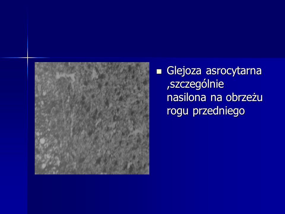 Glejoza asrocytarna,szczególnie nasilona na obrzeżu rogu przedniego Glejoza asrocytarna,szczególnie nasilona na obrzeżu rogu przedniego