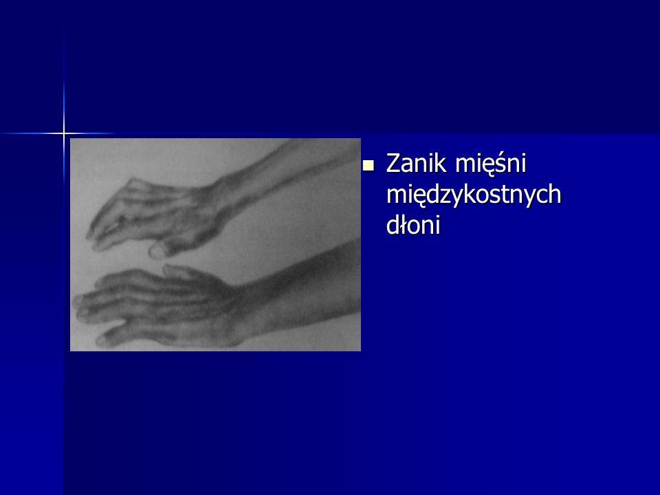 Zanik mięśni międzykostnych dłoni Zanik mięśni międzykostnych dłoni