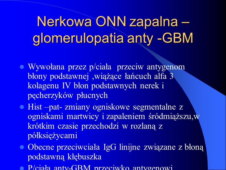 Nerkowa ONN zapalna – glomerulopatia anty -GBM Wywołana przez p/ciała przeciw antygenom błony podstawnej,wiążące łańcuch alfa 3 kolagenu IV błon podst