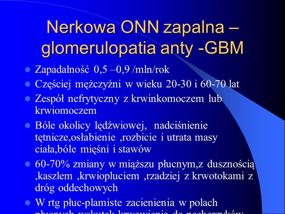 Nerkowa ONN zapalna – glomerulopatia anty -GBM Zapadalność 0,5 –0,9 /mln/rok Częściej mężczyźni w wieku 20-30 i 60-70 lat Zespół nefrytyczny z krwinko