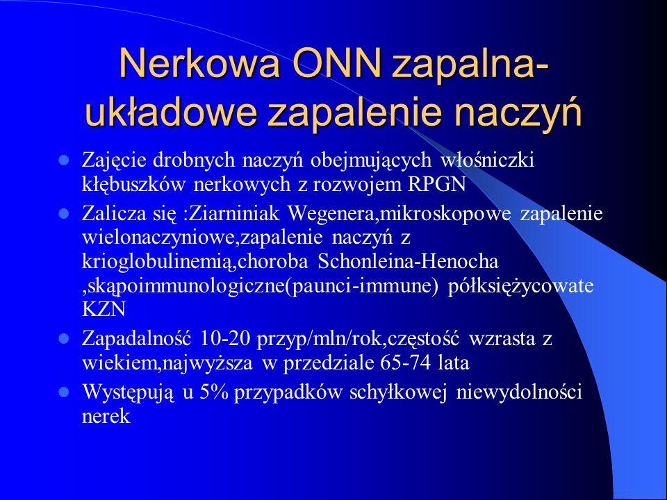 Nerkowa ONN zapalna- układowe zapalenie naczyń Zajęcie drobnych naczyń obejmujących włośniczki kłębuszków nerkowych z rozwojem RPGN Zalicza się :Ziarn