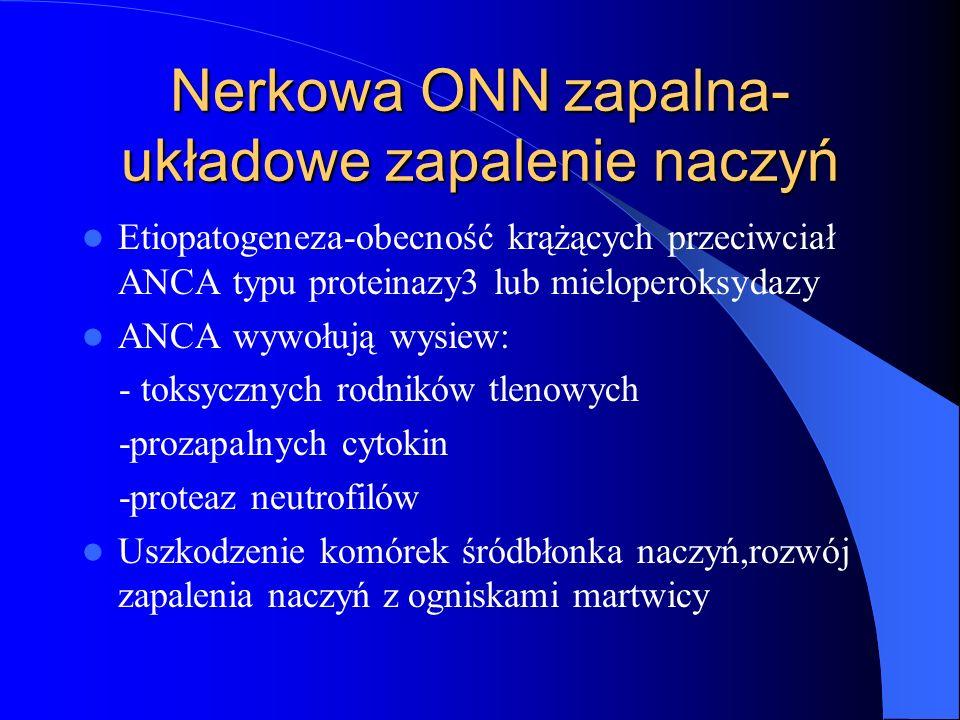 Nerkowa ONN zapalna- układowe zapalenie naczyń Etiopatogeneza-obecność krążących przeciwciał ANCA typu proteinazy3 lub mieloperoksydazy ANCA wywołują