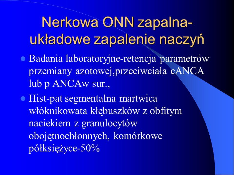 Nerkowa ONN zapalna- układowe zapalenie naczyń Badania laboratoryjne-retencja parametrów przemiany azotowej,przeciwciała cANCA lub p ANCAw sur., Hist-