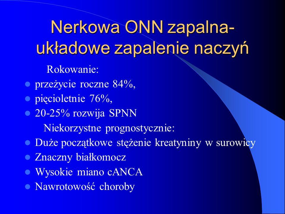 Nerkowa ONN zapalna- układowe zapalenie naczyń Rokowanie: przeżycie roczne 84%, pięcioletnie 76%, 20-25% rozwija SPNN Niekorzystne prognostycznie: Duż