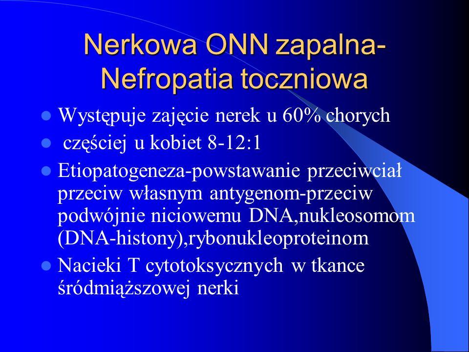Nerkowa ONN zapalna- Nefropatia toczniowa Występuje zajęcie nerek u 60% chorych częściej u kobiet 8-12:1 Etiopatogeneza-powstawanie przeciwciał przeci