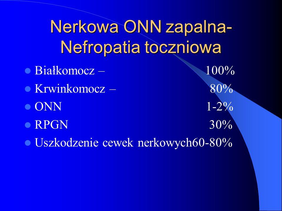 Nerkowa ONN zapalna- Nefropatia toczniowa Białkomocz – 100% Krwinkomocz – 80% ONN 1-2% RPGN 30% Uszkodzenie cewek nerkowych60-80%