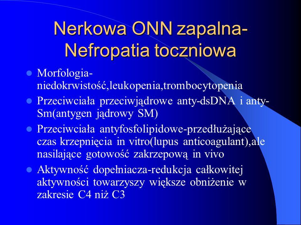 Nerkowa ONN zapalna- Nefropatia toczniowa Morfologia- niedokrwistość,leukopenia,trombocytopenia Przeciwciała przeciwjądrowe anty-dsDNA i anty- Sm(anty