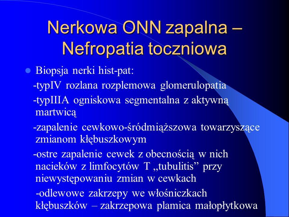 Nerkowa ONN zapalna – Nefropatia toczniowa Biopsja nerki hist-pat: -typIV rozlana rozplemowa glomerulopatia -typIIIA ogniskowa segmentalna z aktywną m