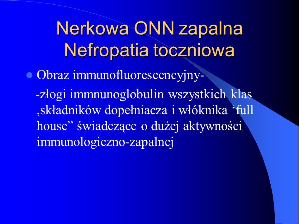 Nerkowa ONN zapalna Nefropatia toczniowa Obraz immunofluorescencyjny- -złogi immnunoglobulin wszystkich klas,składników dopełniacza i włóknika full ho