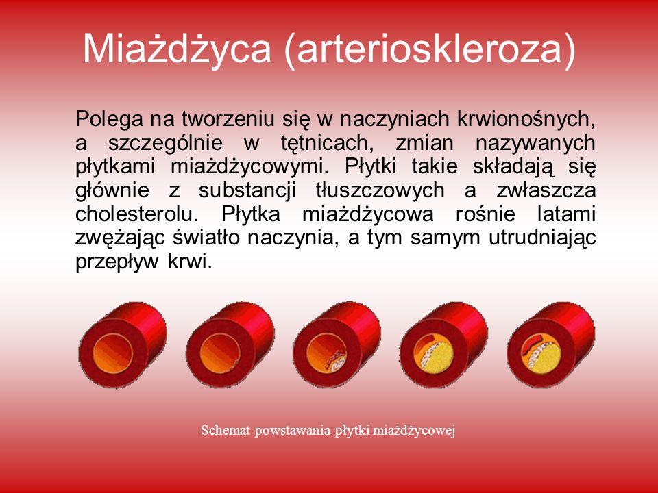 Miażdżyca (arterioskleroza) Polega na tworzeniu się w naczyniach krwionośnych, a szczególnie w tętnicach, zmian nazywanych płytkami miażdżycowymi. Pły