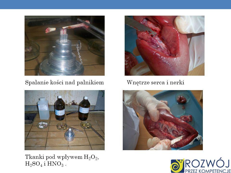 Wnętrze serca i nerkiSpalanie kości nad palnikiem Tkanki pod wpływem H 2 O 2, H 2 SO 4 i HNO 3.