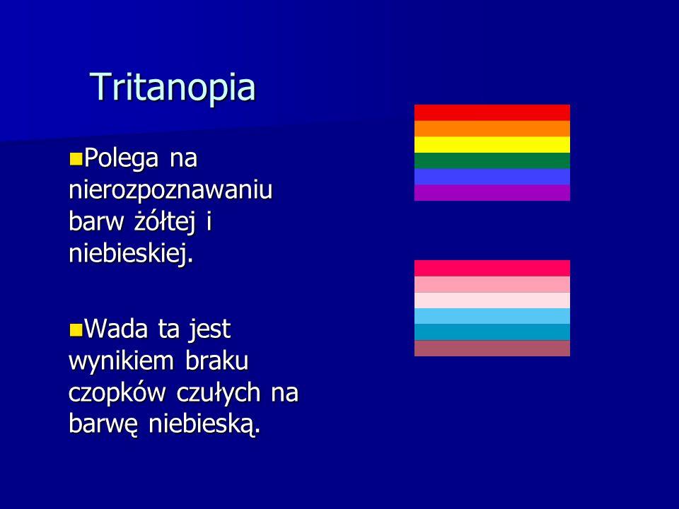 Tritanopia Polega na nierozpoznawaniu barw żółtej i niebieskiej. Polega na nierozpoznawaniu barw żółtej i niebieskiej. Wada ta jest wynikiem braku czo