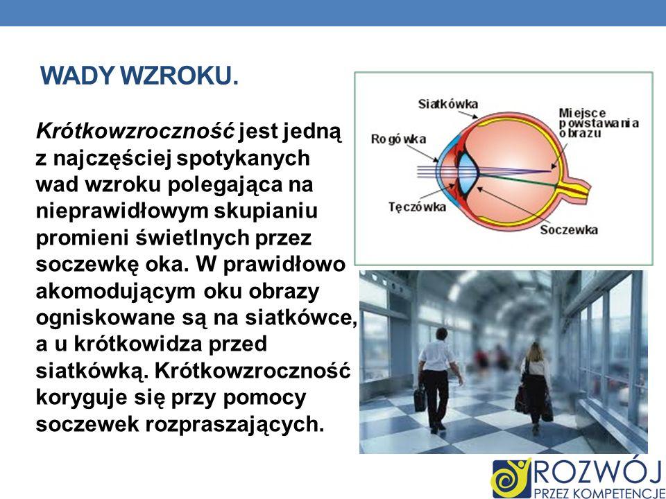 WADY WZROKU. Krótkowzroczność jest jedną z najczęściej spotykanych wad wzroku polegająca na nieprawidłowym skupianiu promieni świetlnych przez soczewk