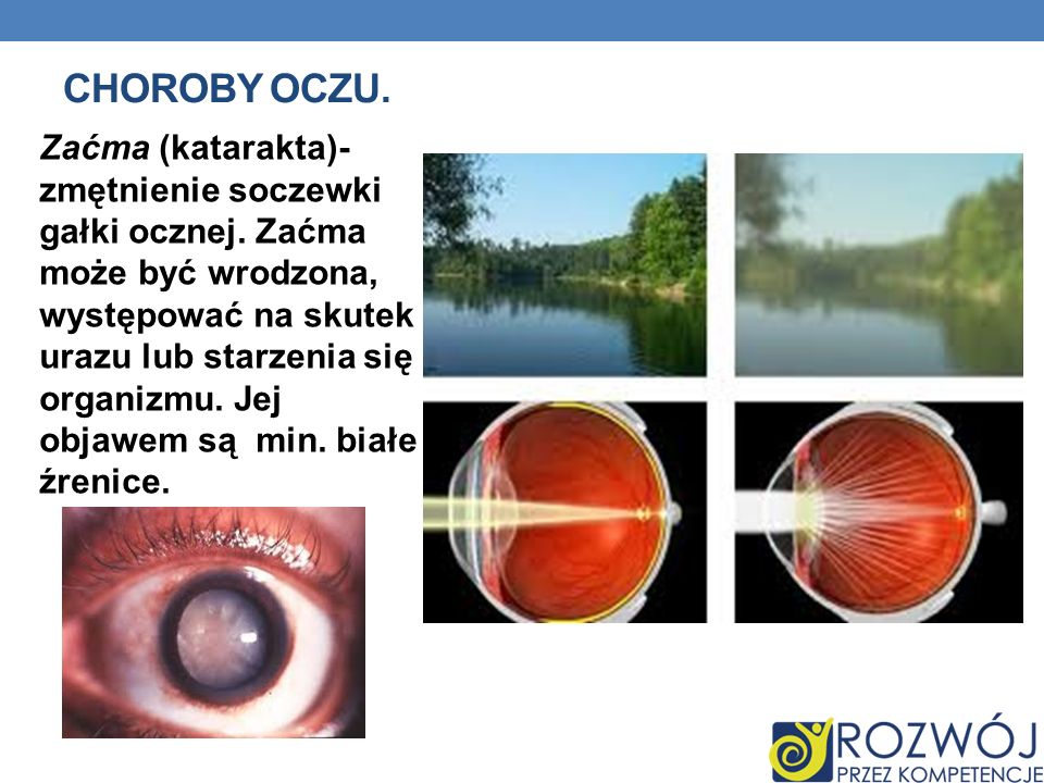 CHOROBY OCZU. Zaćma (katarakta)- zmętnienie soczewki gałki ocznej. Zaćma może być wrodzona, występować na skutek urazu lub starzenia się organizmu. Je
