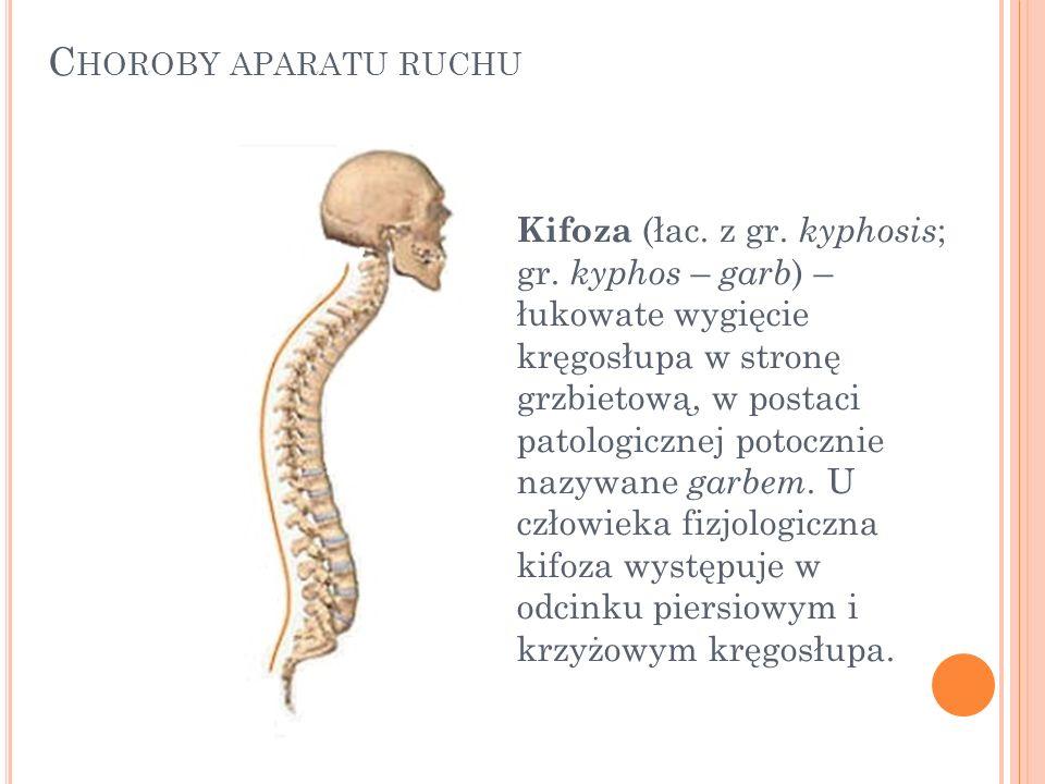 Kifoza (łac. z gr. kyphosis ; gr. kyphos – garb ) – łukowate wygięcie kręgosłupa w stronę grzbietową, w postaci patologicznej potocznie nazywane garbe