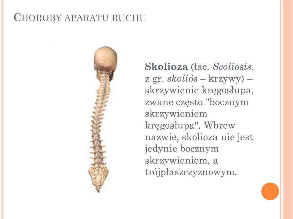 C HOROBY APARATU RUCHU Skolioza (łac. Scoliosis, z gr. skoliós – krzywy) – skrzywienie kręgosłupa, zwane często