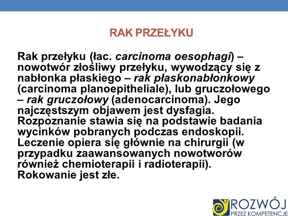 RAK PRZEŁYKU Rak przełyku (łac. carcinoma oesophagi) – nowotwór złośliwy przełyku, wywodzący się z nabłonka płaskiego – rak płaskonabłonkowy (carcinom