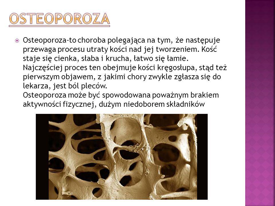 Osteoporoza-to choroba polegająca na tym, że następuje przewaga procesu utraty kości nad jej tworzeniem. Kość staje się cienka, słaba i krucha, łatwo