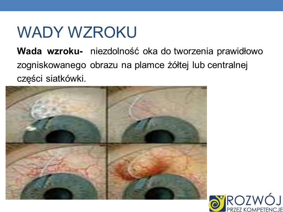 WADY WZROKU Wada wzroku- niezdolność oka do tworzenia prawidłowo zogniskowanego obrazu na plamce żółtej lub centralnej części siatkówki.
