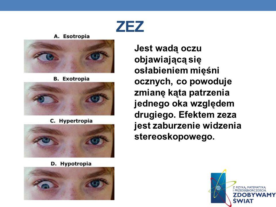 ZEZ Jest wadą oczu objawiającą się osłabieniem mięśni ocznych, co powoduje zmianę kąta patrzenia jednego oka względem drugiego. Efektem zeza jest zabu