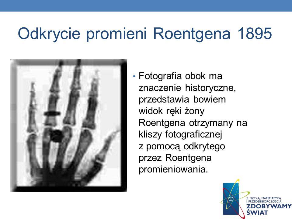 Odkrycie promieni Roentgena 1895 Fotografia obok ma znaczenie historyczne, przedstawia bowiem widok ręki żony Roentgena otrzymany na kliszy fotografic