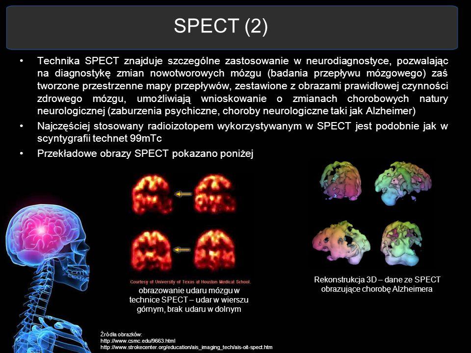 SPECT (2) Technika SPECT znajduje szczególne zastosowanie w neurodiagnostyce, pozwalając na diagnostykę zmian nowotworowych mózgu (badania przepływu m