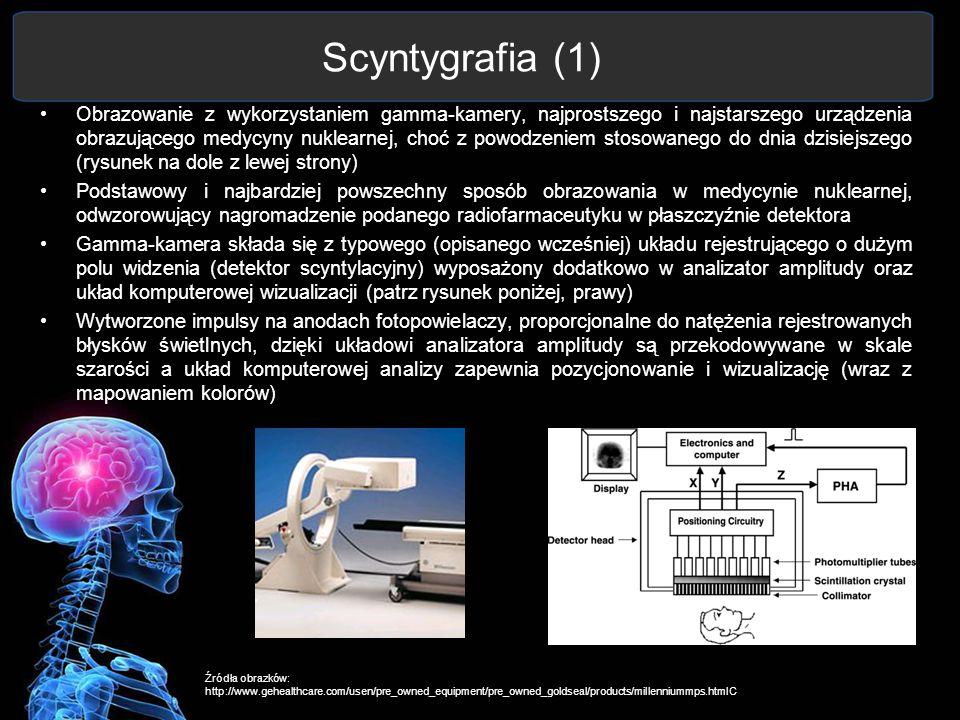 Scyntygrafia (1) Obrazowanie z wykorzystaniem gamma-kamery, najprostszego i najstarszego urządzenia obrazującego medycyny nuklearnej, choć z powodzeni