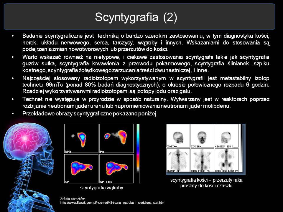 Scyntygrafia (2) Badanie scyntygraficzne jest techniką o bardzo szerokim zastosowaniu, w tym diagnostyka kości, nerek, układu nerwowego, serca, tarczy