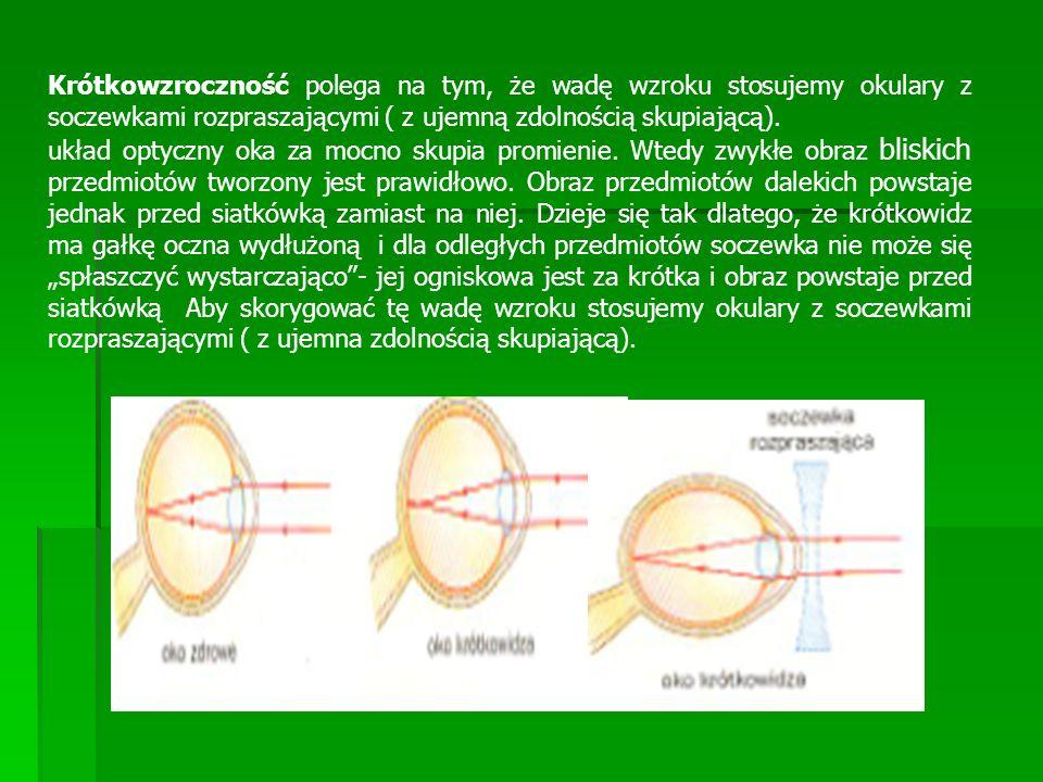 Krótkowzroczność polega na tym, że wadę wzroku stosujemy okulary z soczewkami rozpraszającymi ( z ujemną zdolnością skupiającą). układ optyczny oka za
