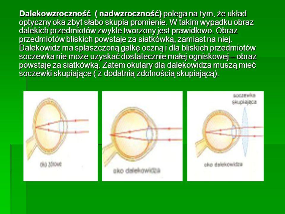 Dalekowzroczność ( nadwzroczność) polega na tym, że układ optyczny oka zbyt słabo skupia promienie. W takim wypadku obraz dalekich przedmiotów zwykle