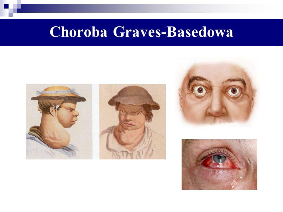 Choroba Graves-Basedowa