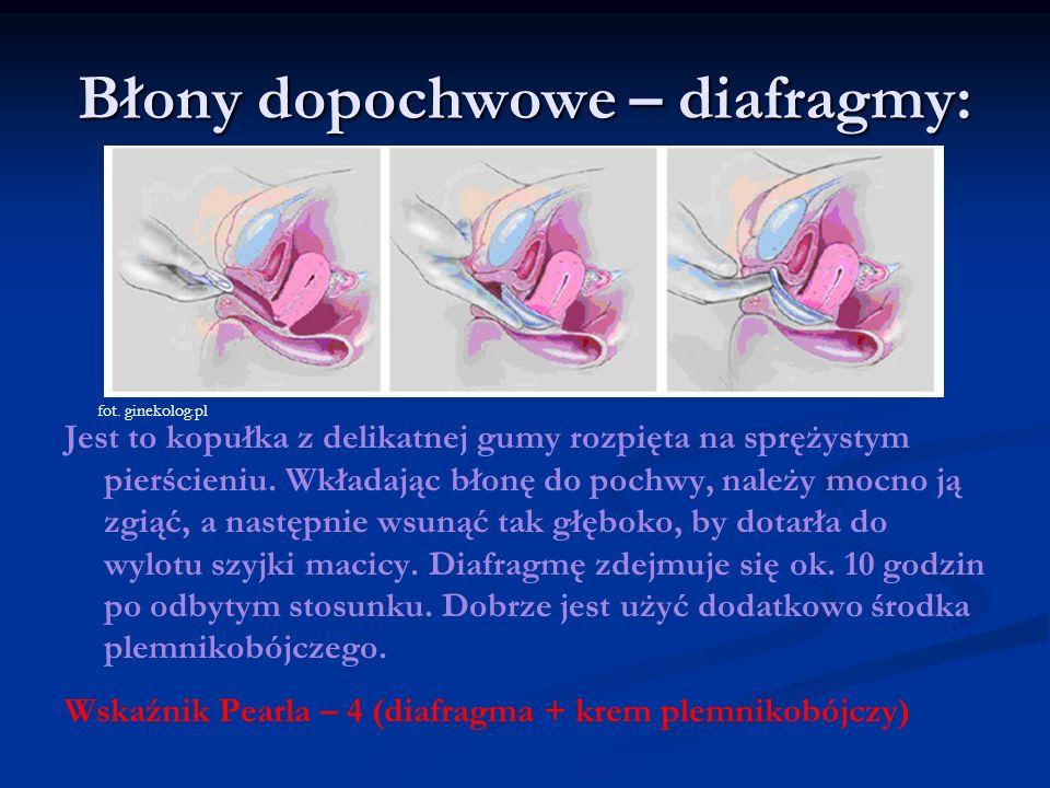 Błony dopochwowe – diafragmy: Jest to kopułka z delikatnej gumy rozpięta na sprężystym pierścieniu. Wkładając błonę do pochwy, należy mocno ją zgiąć,