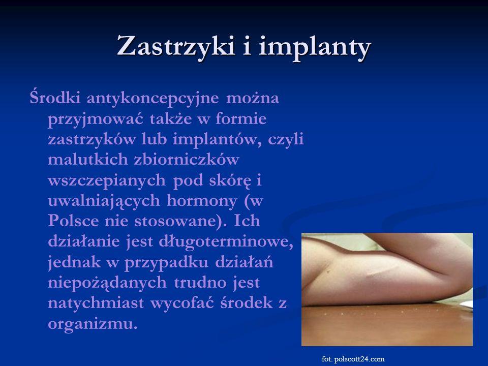 Zastrzyki i implanty Środki antykoncepcyjne można przyjmować także w formie zastrzyków lub implantów, czyli malutkich zbiorniczków wszczepianych pod s