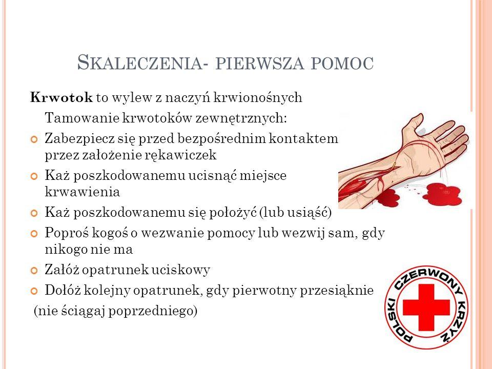 S KALECZENIA - PIERWSZA POMOC Krwotok to wylew z naczyń krwionośnych Tamowanie krwotoków zewnętrznych: Zabezpiecz się przed bezpośrednim kontaktem z k