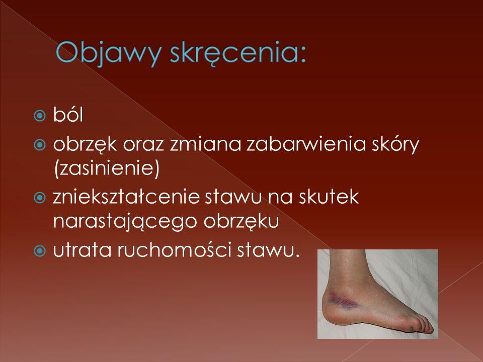 ból obrzęk oraz zmiana zabarwienia skóry (zasinienie) zniekształcenie stawu na skutek narastającego obrzęku utrata ruchomości stawu.