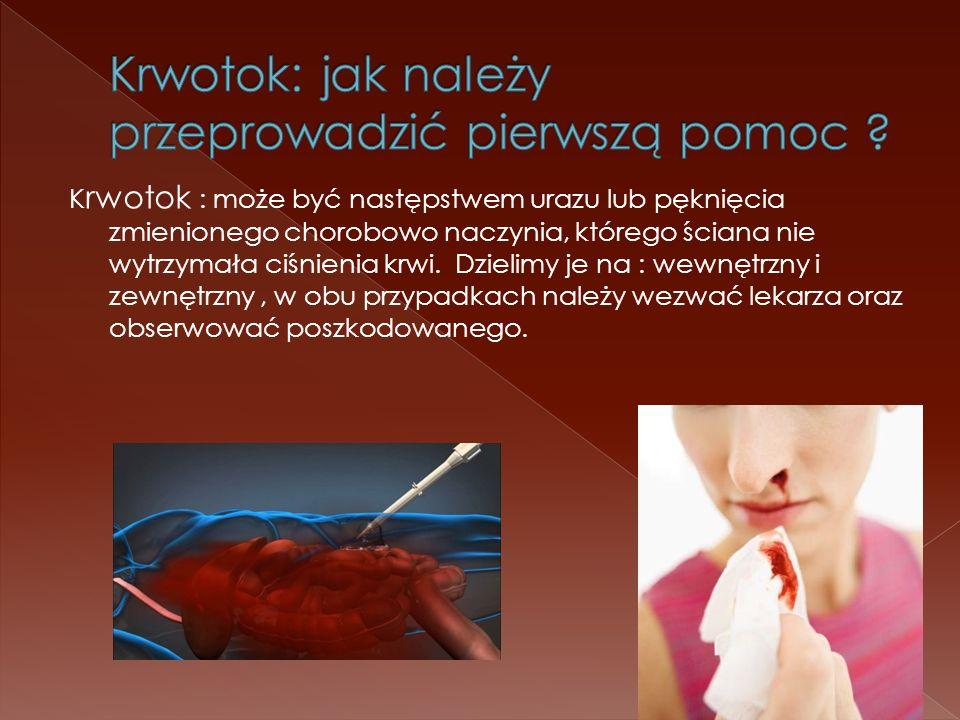 K rwotok : może być następstwem urazu lub pęknięcia zmienionego chorobowo naczynia, którego ściana nie wytrzymała ciśnienia krwi. Dzielimy je na : wew