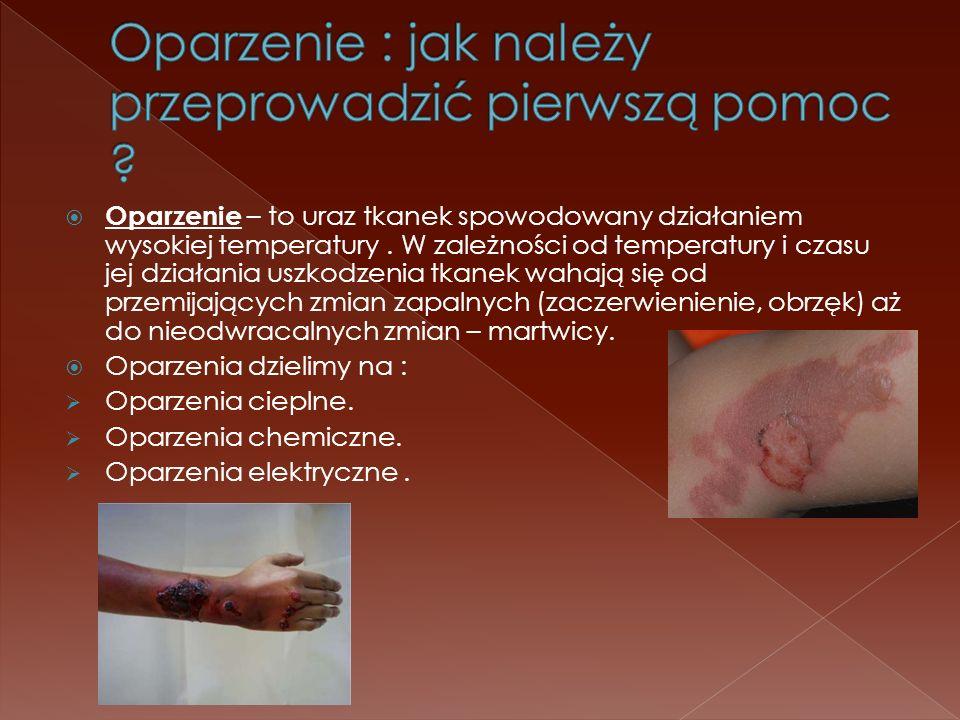 Oparzenie – to uraz tkanek spowodowany działaniem wysokiej temperatury. W zależności od temperatury i czasu jej działania uszkodzenia tkanek wahają si