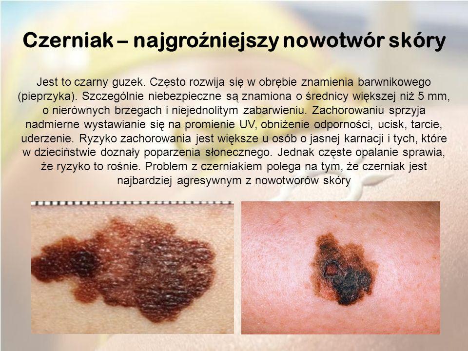 Czerniak – najgro ź niejszy nowotwór skóry Jest to czarny guzek.