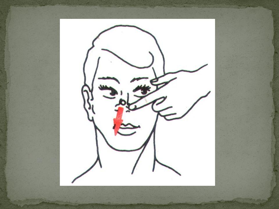 Jedyne co może zrobić poszkodowany to zatkać druga dziurkę i spróbować wydmuchnąć. Użycie jakichkolwiek narzędzi grozi wystąpieniem krwawienia.