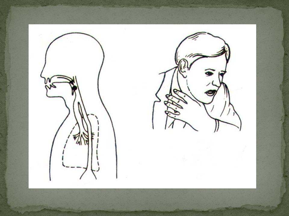 Ciało obce w przełyku Utkwienie w przełyku ciała obcego jest brane pod uwagę w przypadku ściskającego bólu i trudności w przełykaniu. W takiej sytuacj