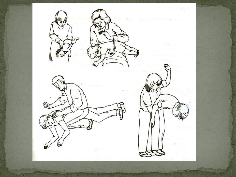 W przypadku zatkania dróg oddechowych przez ciało obce należy wykonać wypchnięcie brzuszne, czyli rękoczyn Heimlicha. Metoda ta polega na silnym, ener